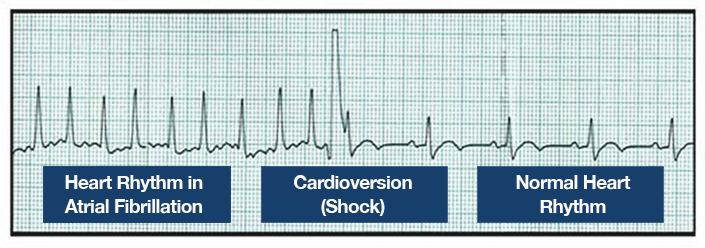 EKG showing cardioversion